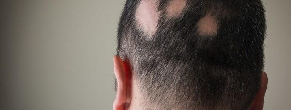 alopeccia